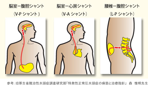水頭 症 シャント